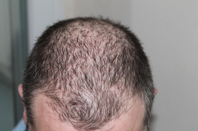 normal hair loss